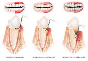 periodontitisComp